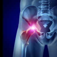 DePuy ASR Hip Replacement Settlement