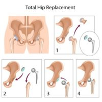 Images of a hip replacement