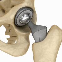 hip-implant-pic