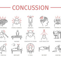 Concussion side effects list